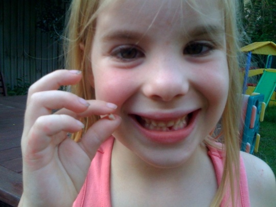Caillie's lost tooth